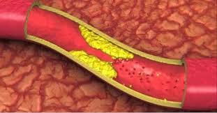 Risultati immagini per foto divertenti colesterolo