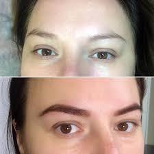 биотатуаж до и после фото
