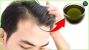 Male Pattern Baldness Cure Cool Male Pattern Baldness Reversal Naturally In 48 Weeks Baldness Cure