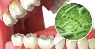 common dental infections
