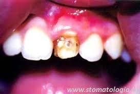 Гипоплазия эмали зубов Реферат страница  Э то нарушение образования эмали на постоянных зубах в результате вовлечения в воспалительной процесс зачатков зубов или при их механической травме