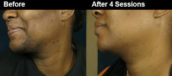how laser hair removal helps ingrown hairs