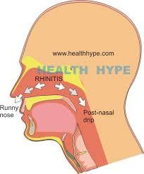 Post-Nasal Drip (Mucus, Phlegm, Pus Draining Back of Throat ...