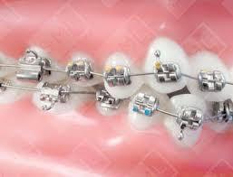 Dental Brackets Stainless Steel Brackets Begg Brackets Ceramic