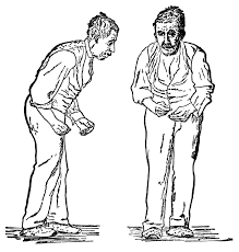 aging and parkinson s and me parkinson s disease the long in 1817 james parkinson published ldquoan essay on the shaking palsy rdquo he had observed several classic symptoms tremor rigidity postural instability in a
