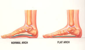 Flat Footed The Best Way To Build Arches In Flat Feet