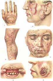 Туберкулез кожи симптомы признаки диагностика и лечение  Туберкулез кожи