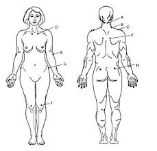 Fibromyalgia Tender Points Chart Natural Cure For Fibromyalgia Fibromyalgia Tender Point Chart