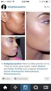 makeup youtu be 7ymzlvv fk how to cover up acne scars