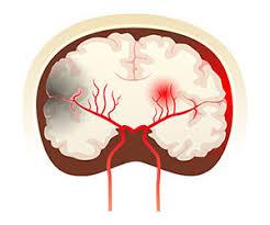 「脳出血」の画像検索結果
