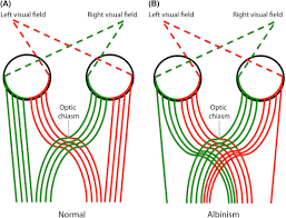 Visual Field Chart Interpretation Visual Pathway An Overview Sciencedirect Topics