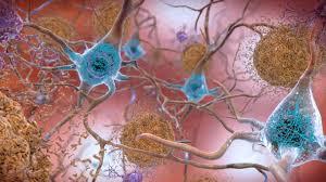brain plaque alzheimer ile ilgili görsel sonucu