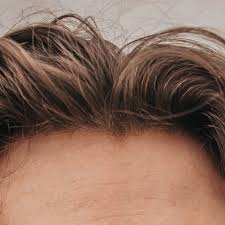 forehead reduction hair lowering