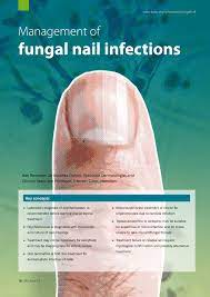 pdf fungal nail infections