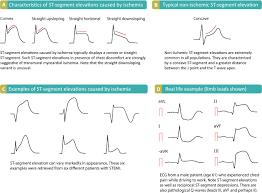 Stemi St Elevation Myocardial Infarction Diagnosis Criteria Ecg