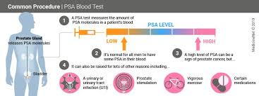 Prostate Specific Antigen Psa Test Results Levels Ranges