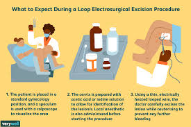 Light Exercise After Lletz Leep Procedure Purpose Procedure And Recovery