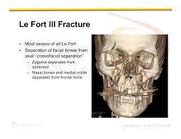 Le Fort Fracture Imaging Of Facial Trauma