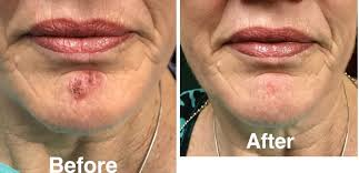 cold sore herpetic lesion laser