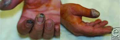 Management Of Hydrofluoric Acid Burns