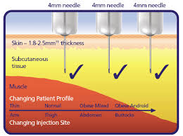 29 High Quality Injection Needle Sizes Chart