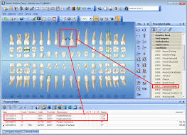 Dentrix Tip Tuesdays Charting Conditions Using Ada