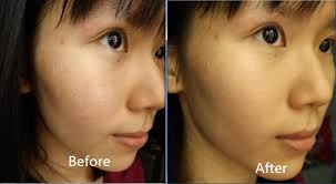 makeup covering depressed scars with makeup without concealer