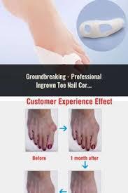 <b>1Pair</b>=<b>2Pcs Bunion Protector</b> Feet Care Orthotics Pedicure Tool ...