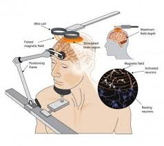 compare brain stimulation techniques and applications transcranial magnetic stimulation diagram