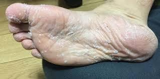 お 風呂 上がり 足 の 裏 皮 が むける