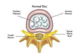 herniated disc how long to heal