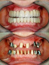 get answers to your oral health questions dentist sydney finkelstein teeth implants