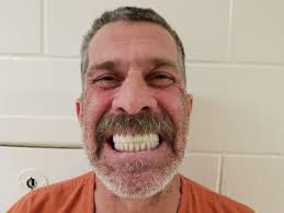 10k Man Dental In Implants Steals Fake For Id 41k Florida Uses f6xqa