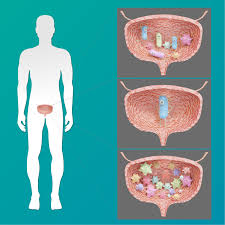 Bacteriuria Asintomática - aeuexp