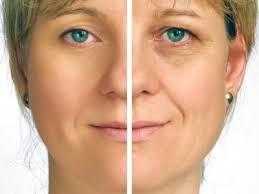 la mesotherapie du visage