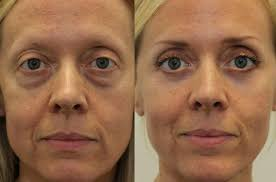 kotlus oculoplastic eye bag surgery