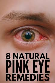 home remes for pink eye want to know how to get rid of conjunctivitis fast