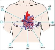 Ekg Lead Placement Chart The Ultimate 12 Lead Ecg Placement Guide With Illustrations