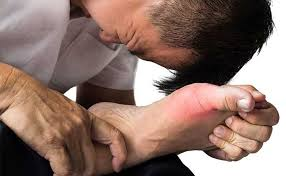 Image result for Lowers Risk of Gout