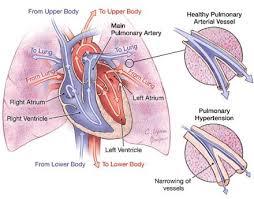 Blood Pressure Diagram Pin By Nonas Arc On Pulmonary Hypertension Congenital Pinterest
