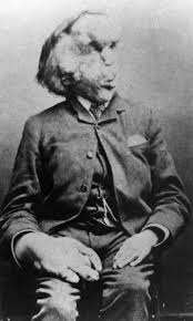 best the elephant man images the elephants joseph carey merrick aka the elephant man and the reason for many of my nightmares