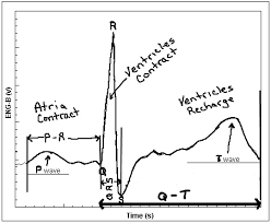 Ecg Chart Labeled Untitled Document