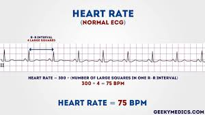 Ecg Chart Examples How To Read An Ecg Ecg Interpretation Geeky Medics