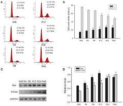 Knockdown Of Ran Gtpase Expression Inhibits The
