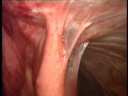 verwachsungen nach laparoskopie