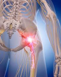 sciatica and sciatic nerve pain information