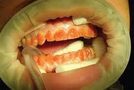 Реферат Отбеливание зубов ru Процедура во многом похожа губы и десны изолируются на зубы наносится отбеливающий гель Единственная разница в том что для активации отбеливающего