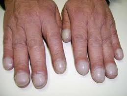 Cystická Fibróza Cf Starší Název Mukoviscidóza