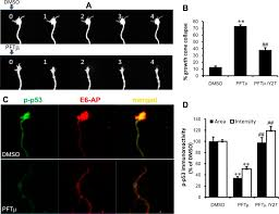 a novel function for p53 regulation of growth cone motility through Automotive Wiring Diagrams at 1992 P53 Wiring Diagram