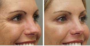Botox for face wrinkles